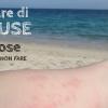 Punture di meduse: Ecco le 10 cose da fare (e da non fare) 2